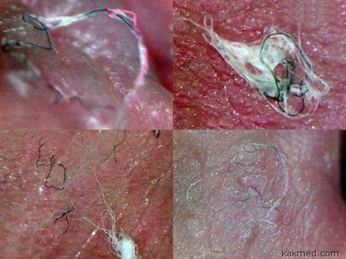 Хвороба моргеллонів (morgellons)