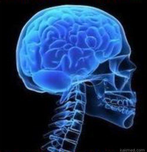 Cadasil: симптоми, діагностика, лікування