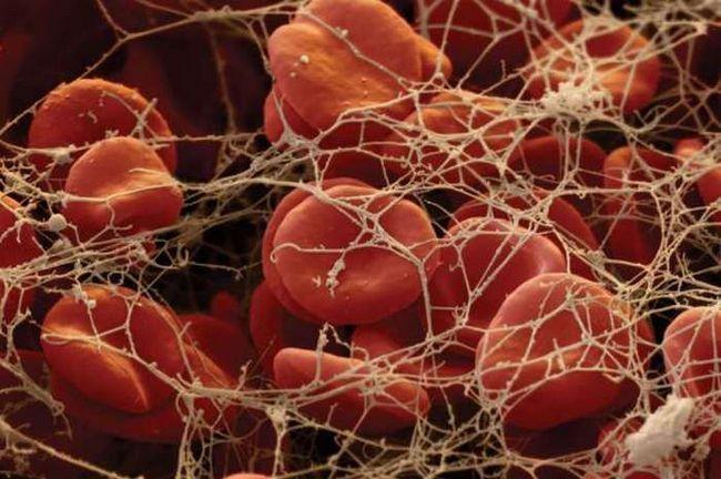 Фібриноген в крові