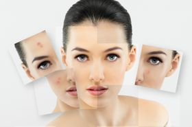 Проблемна шкіра обличчя - наслідок раціону харчування
